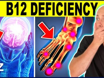 7 Warning Signs That You Have A B12 Deficiency